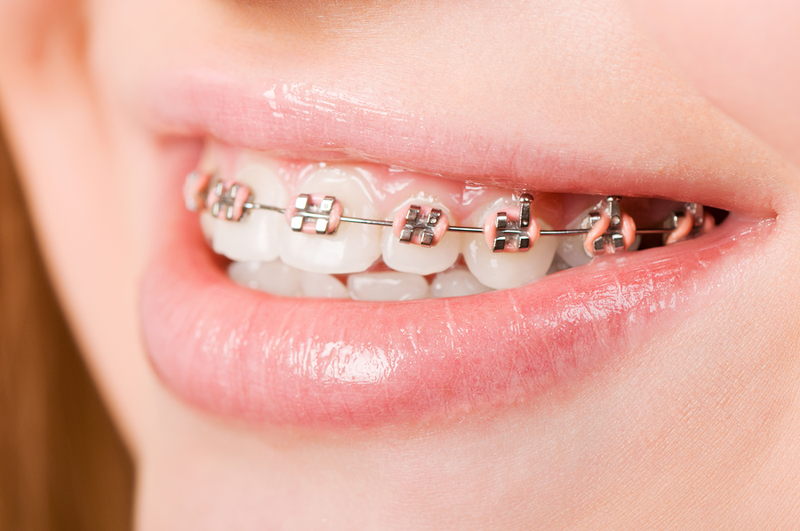 Braces from our Victorville Orthodontist