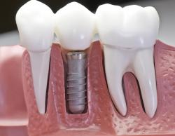 Dental implants in Victorville, CA